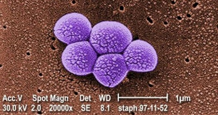 Staphylococcus aureus (staph) bacteria under a scanning electron microscope