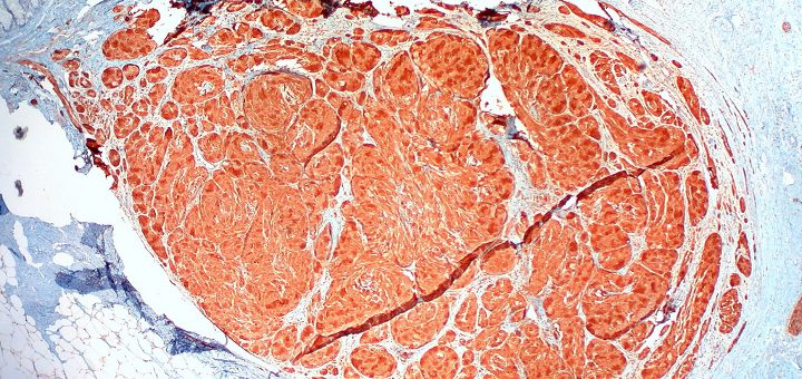 Granular cell tumor of the sigmoid colon under microscope (Photo: Ed Uthman/Flickr)