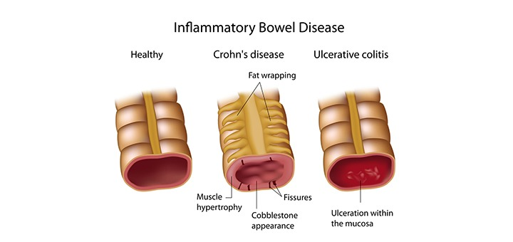 What Is Inflammatory Bowel Disease