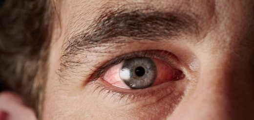 Why Does Marijuana Make Your Eyes Red?